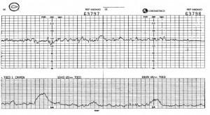 Monitorizacion Fetal 300x165