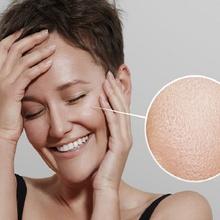 Oily Skin Group