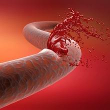Cómo detener hemorragias