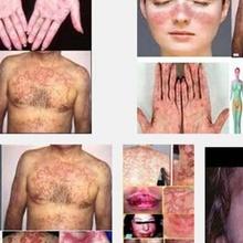 Penyebab & Gejala Penyakit Lupus